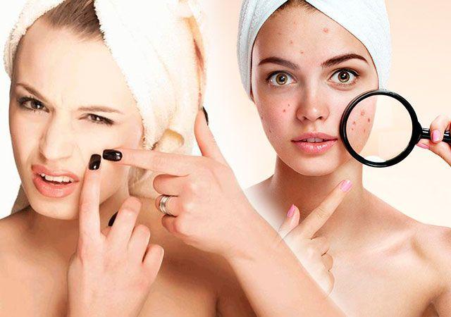Як позбутися від прищів на обличчі в домашніх умовах швидко за 1 день