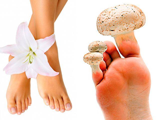 Як лікувати грибок нігтів на ногах