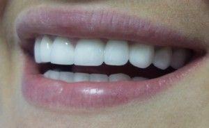 Як відбілити металокерамічні зуби на дому