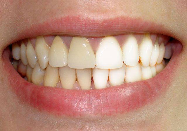 Як в домашніх умовах відбілити зуби