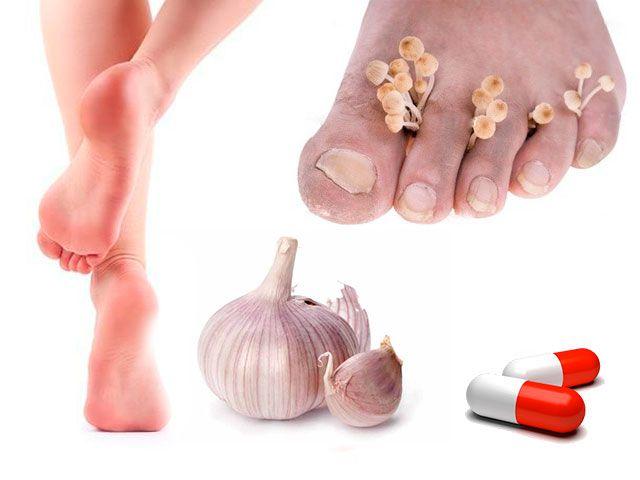 Як вилікувати грибок нігтів на ногах в домашніх умовах