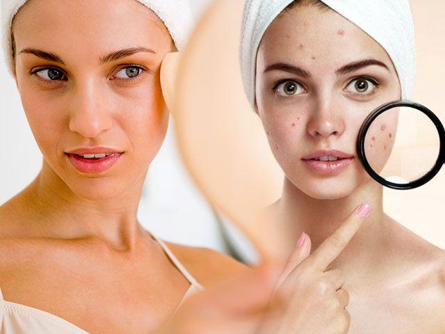 Маска для проблемної шкіри обличчя в домашніх умовах