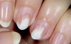 Онихолизис нігтів: опис, причини появи і способи лікування
